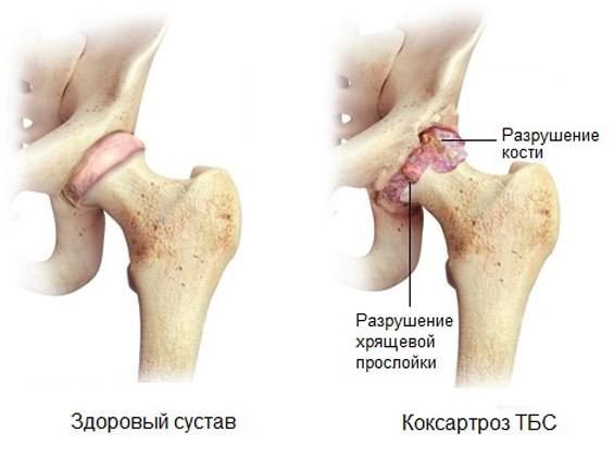 Остеоартроз (артроз): что это такое и как его лечить, симптомы