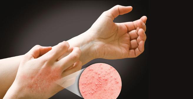 Что делать если аллергия на резиновые перчатки — Аллергия на всё