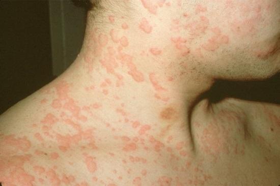 Прыщи от аллергии на цитрусовые thumbnail