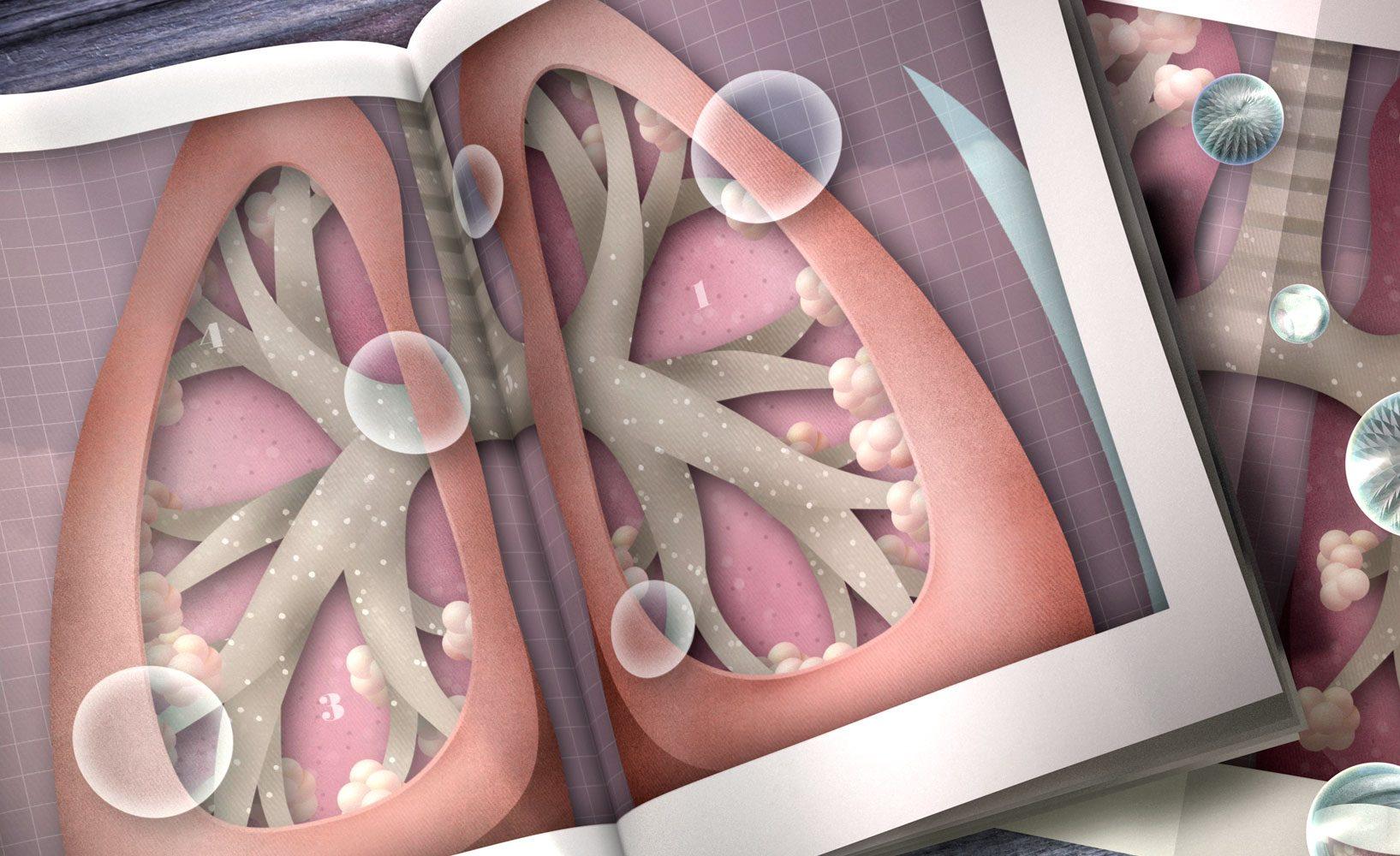 Бронхиолит симптомы лечение