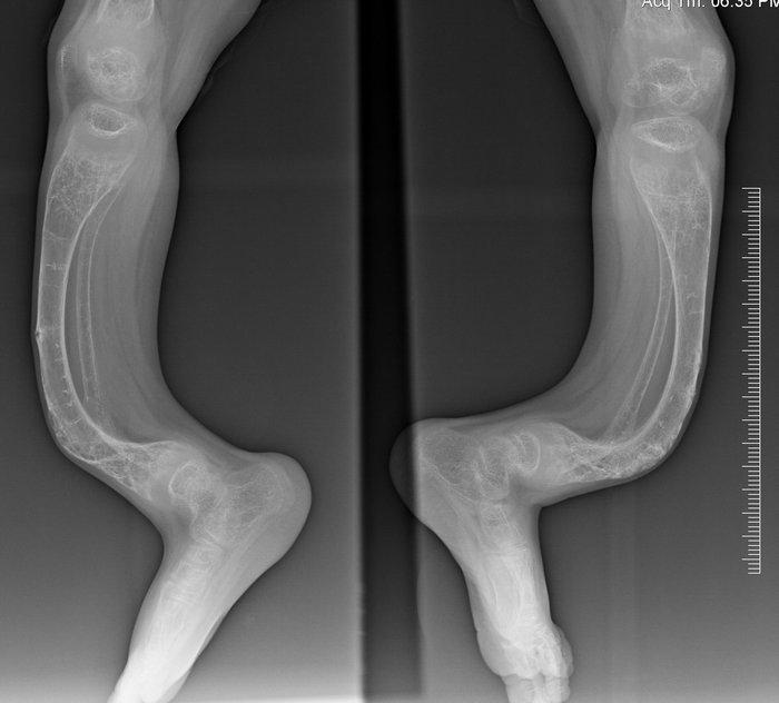Как лечить гипермобильность коленного сустава