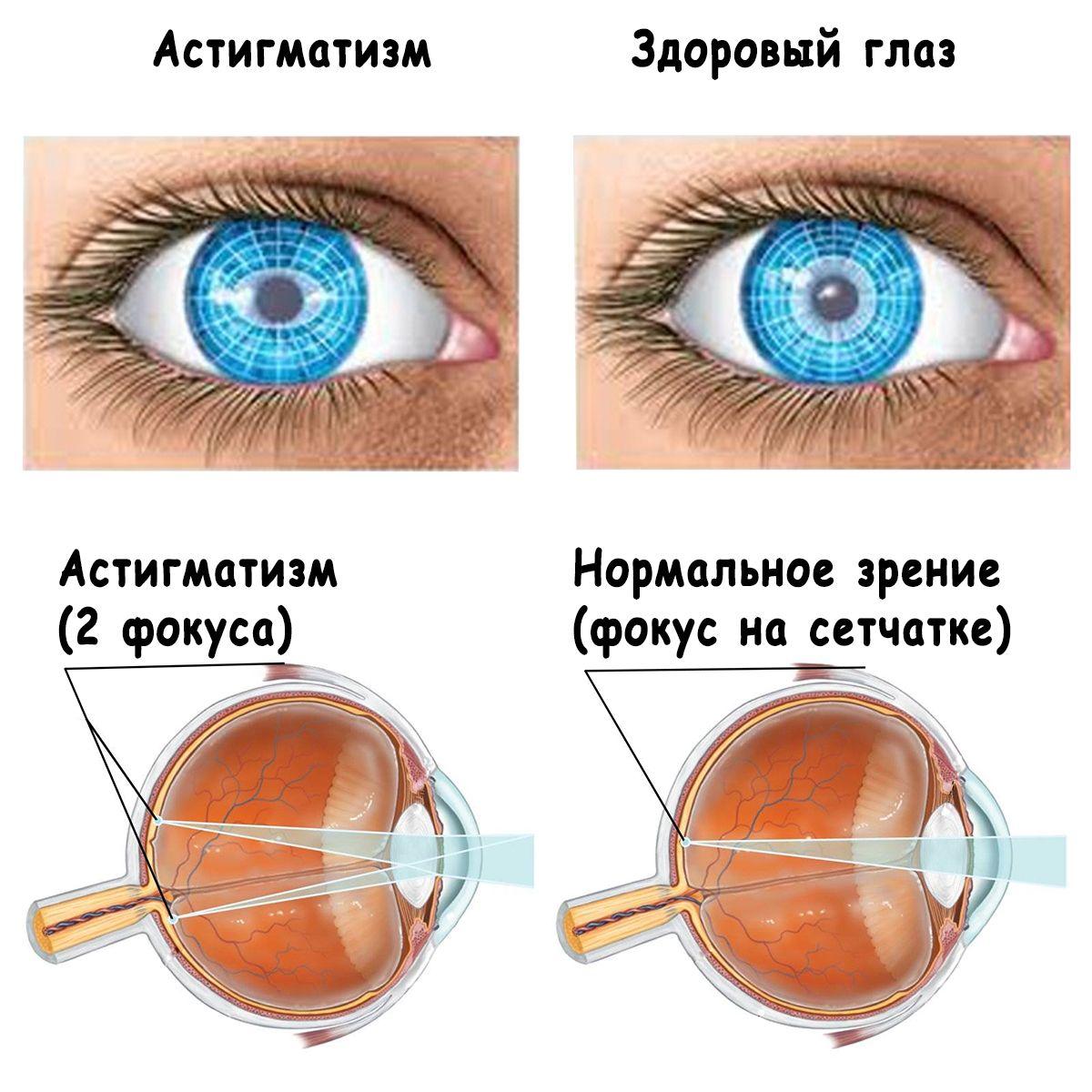 Гиперметропический астигматизм левого глаза