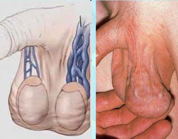 Варикоцеле у мужчин - симптомы, причины, лечение