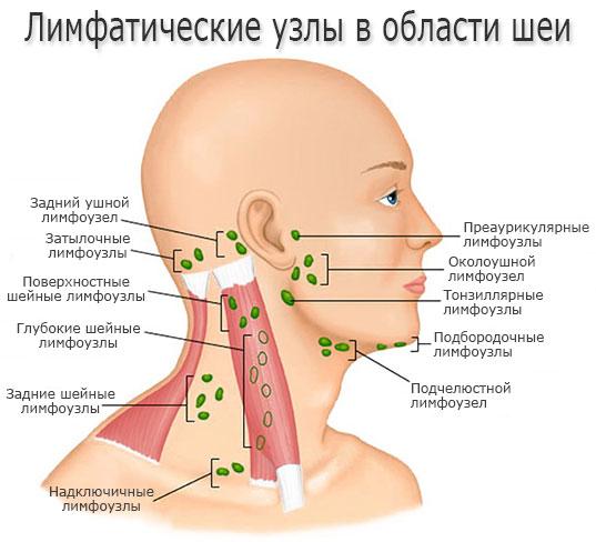 Осложнения после лимфаденита