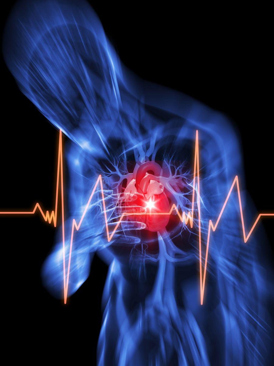 Каковы признаки остановки сердца