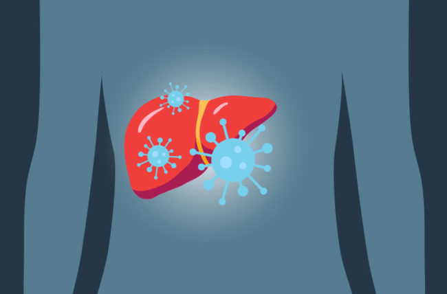 Болезнь гепатит с по симптомам i