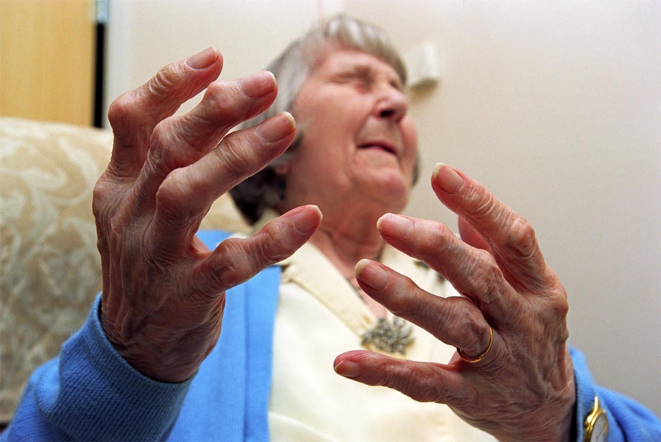 Проявления ревматической полимиалгии и способы ее лечения