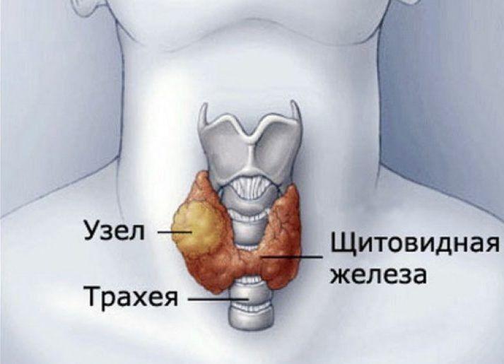 Аденома щитовидной железы это рак или нет