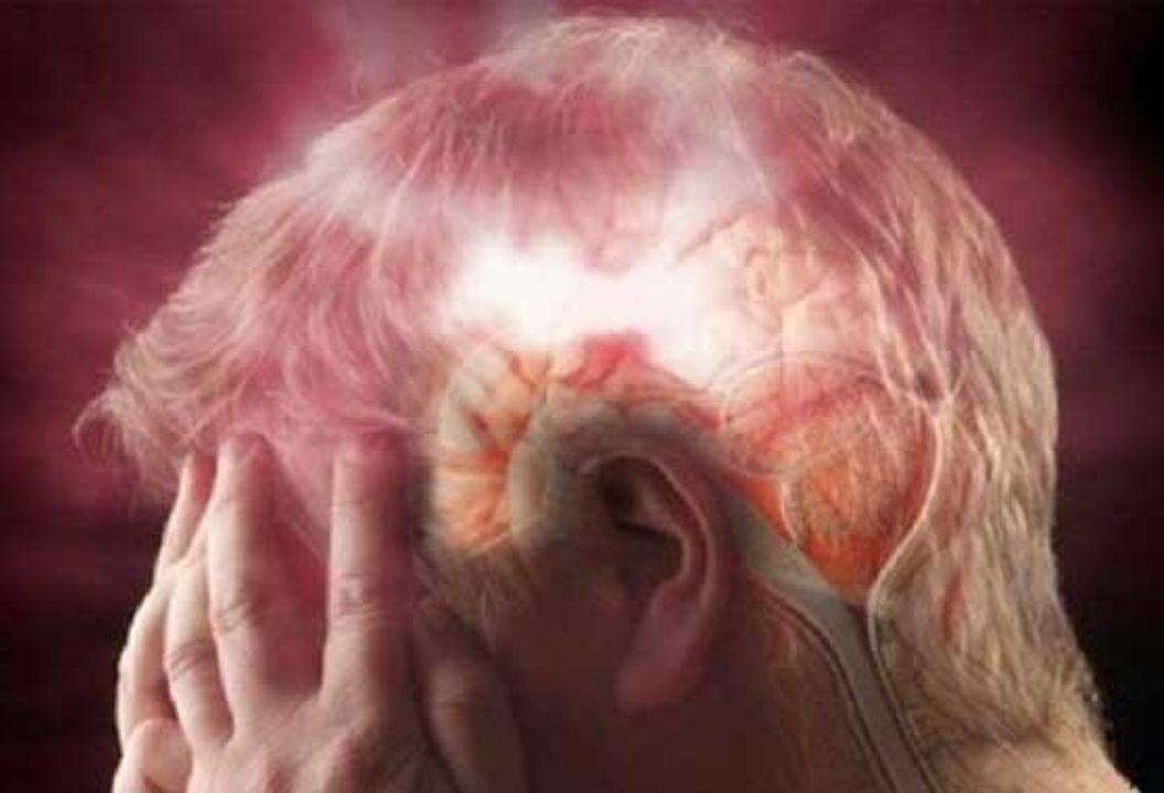Смерть от кровоизлияния в мозг