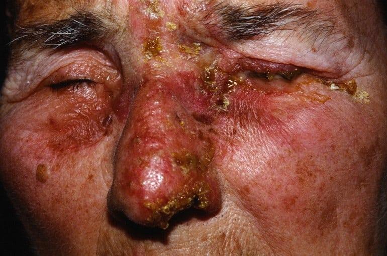 Опоясывающий лишай – симптомы, лечение, фото